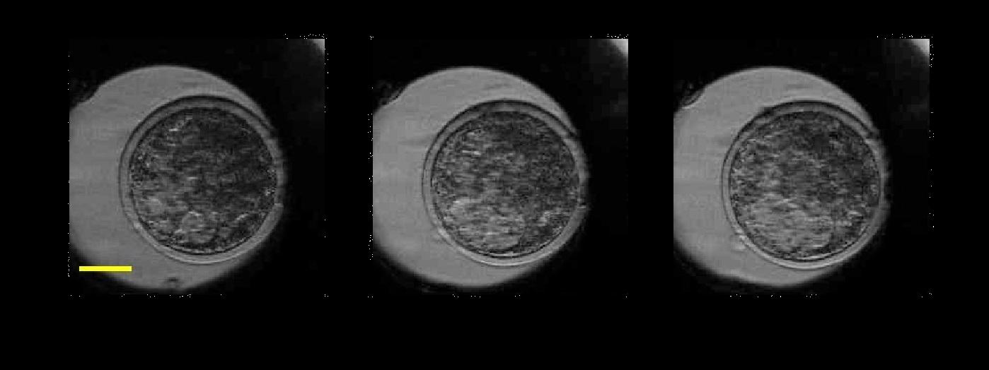 embryo-2